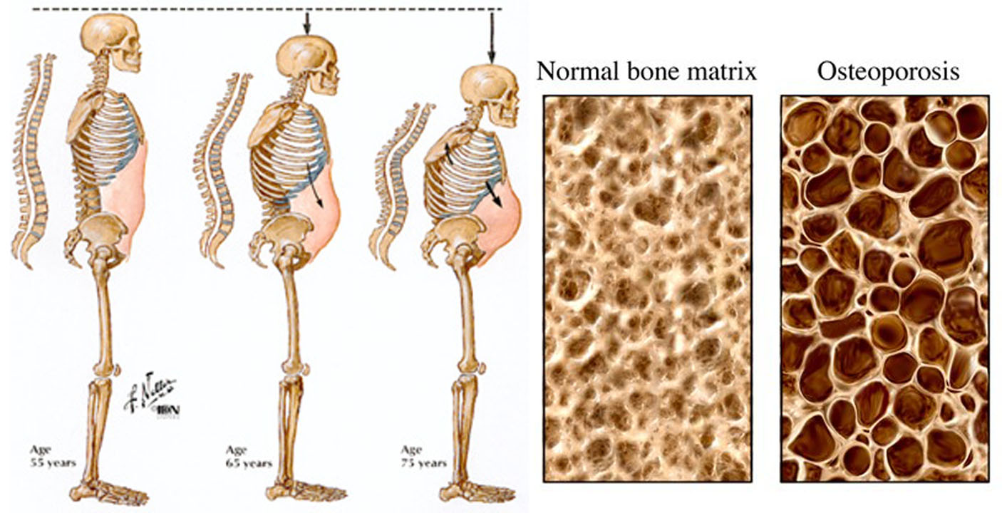 34++ Contributing factors for osteoporosis include ideas