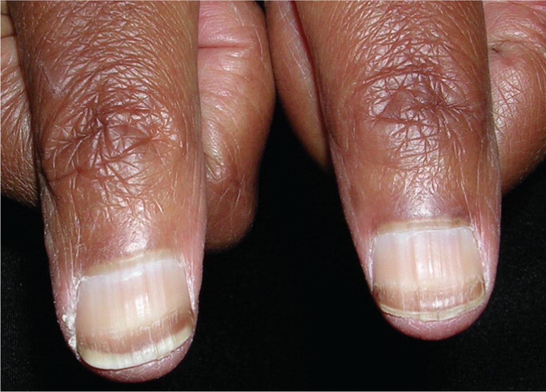 light black line on fingernail - HD1500×1077