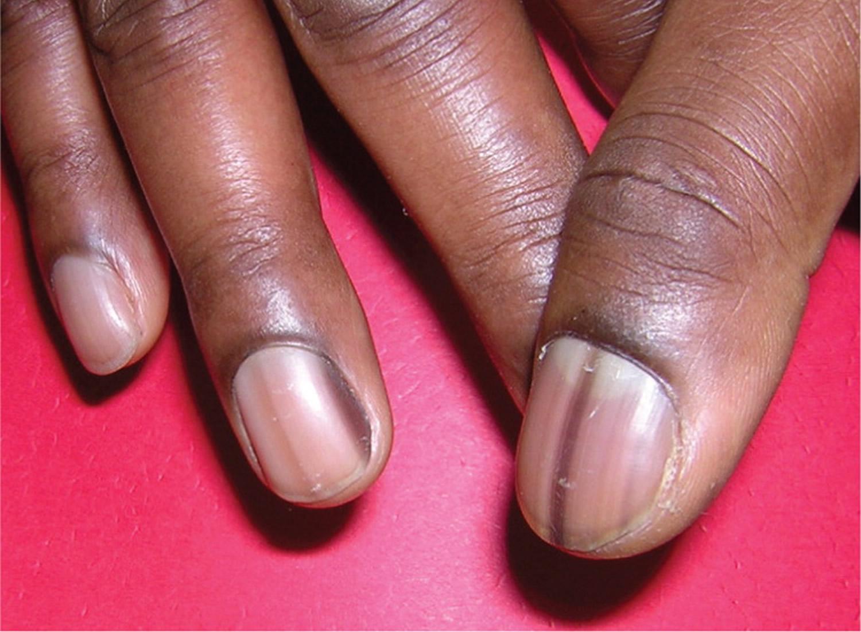 light black line on fingernail - HD1500×1101