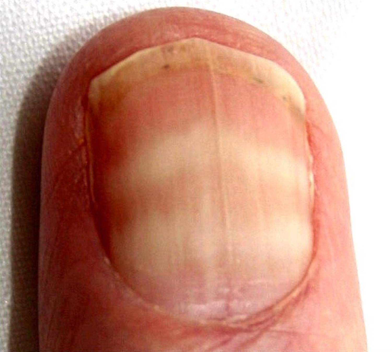 light black line on fingernail - HD1500×1346