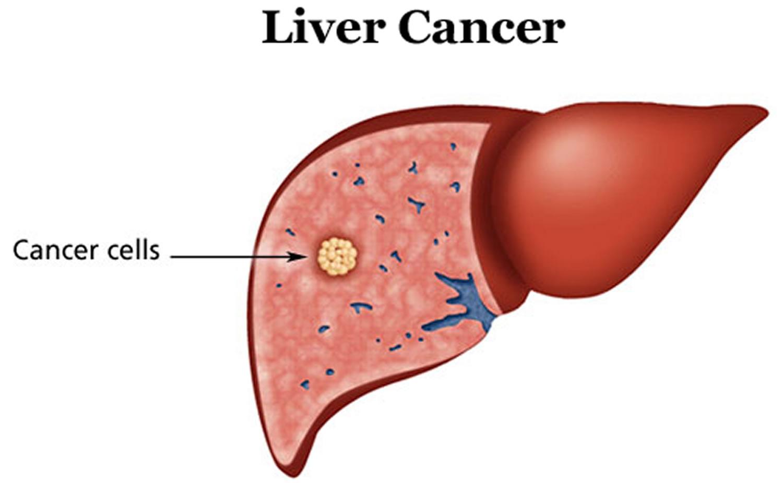 hepatic cancer bleeding