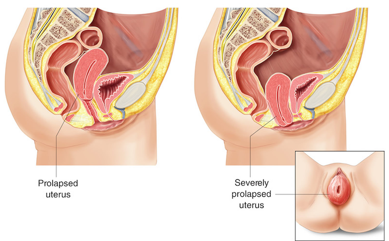 prolapsed uterus – severe