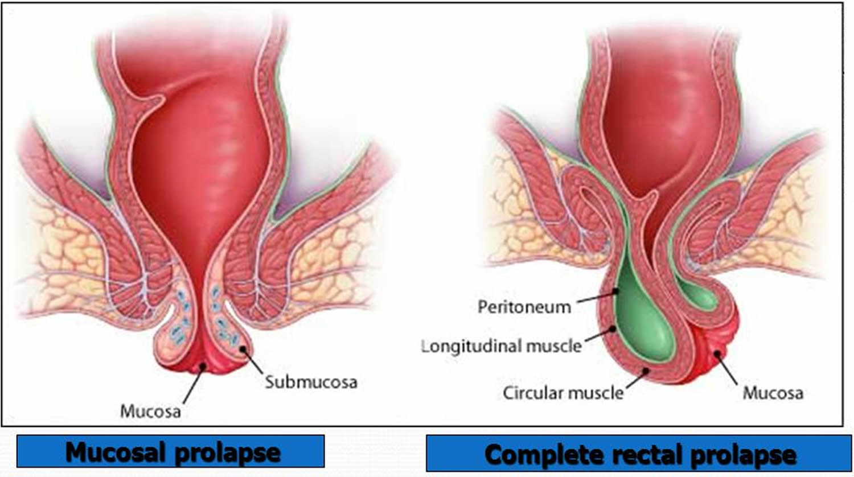 acrochordons hemorrhoids Anal vs