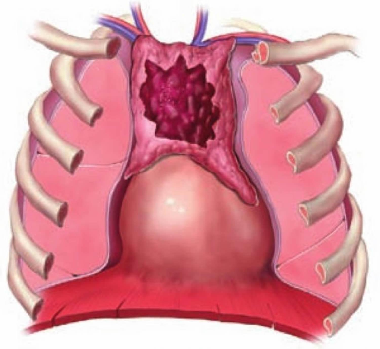 thymus cancer