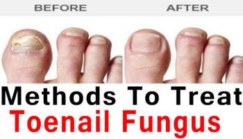 toenail fungus cure