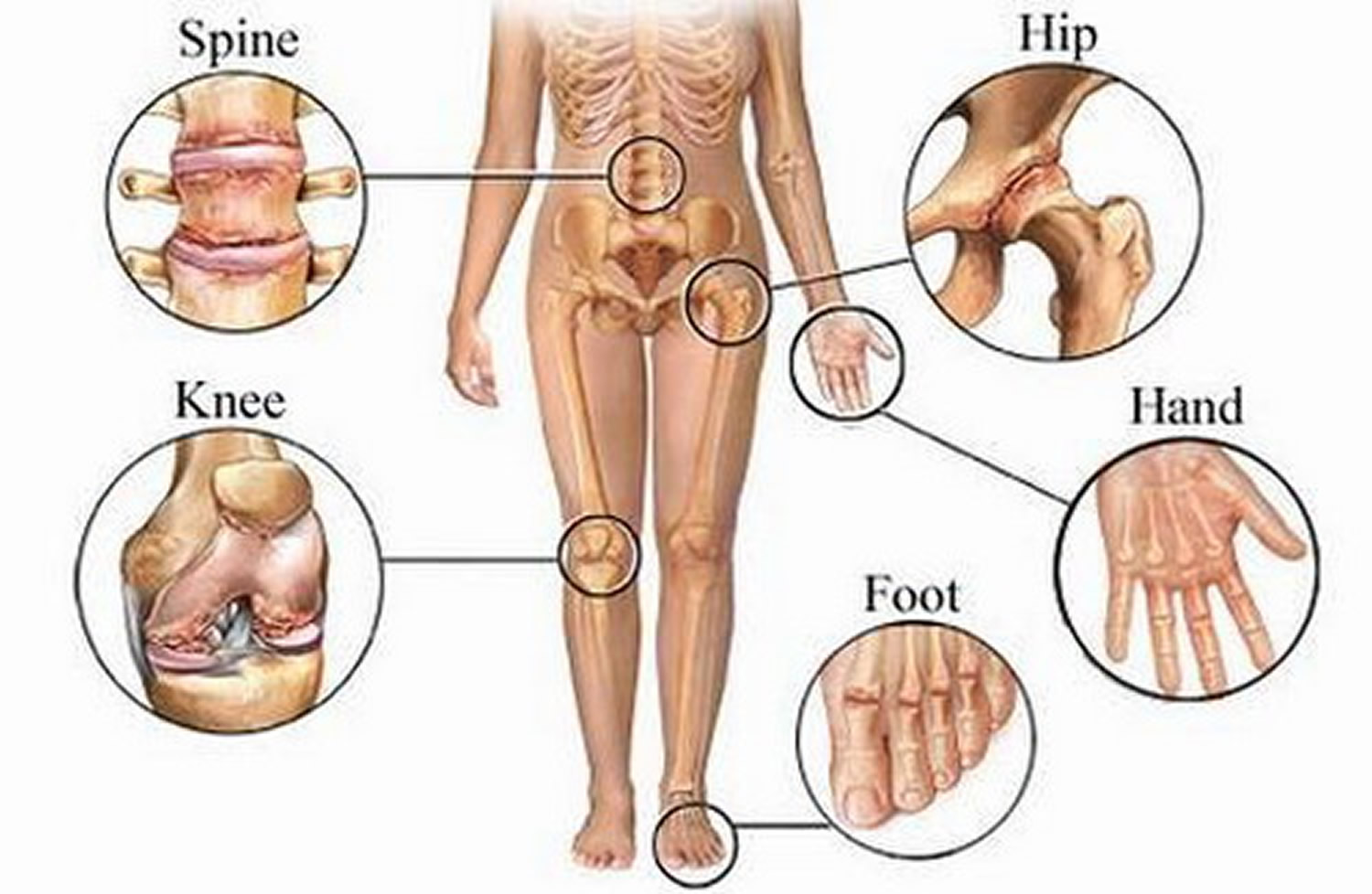 Types Classification Of Body Joints Cartilaginous Synovial Joint A synchondrosis joint is the first sternocostal joint (where the first rib meets the sternum). cartilaginous synovial joint