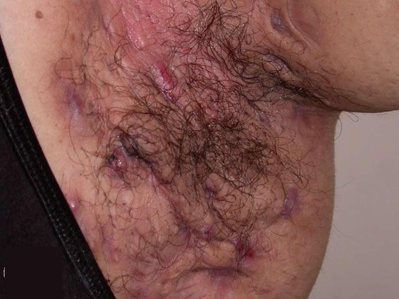Hidradenitis Suppurativa Before After Pictures