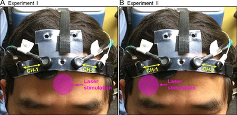 Transcranial photobiomodulation