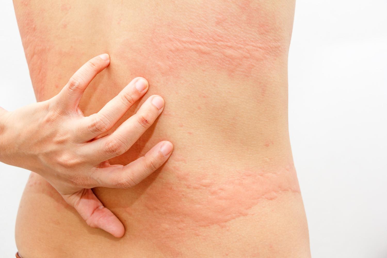 Aquagenic Urticaria - Strangest Diseases