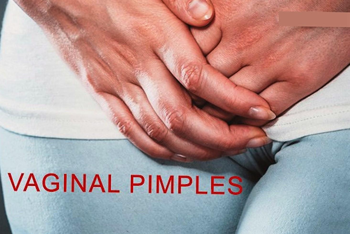 vaginal pimples