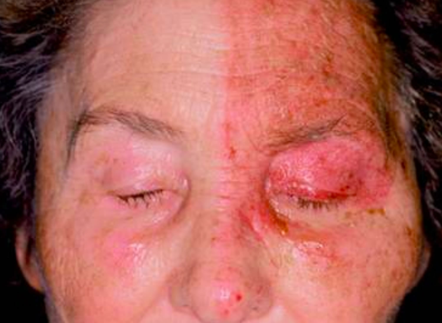 Shingles in the eye