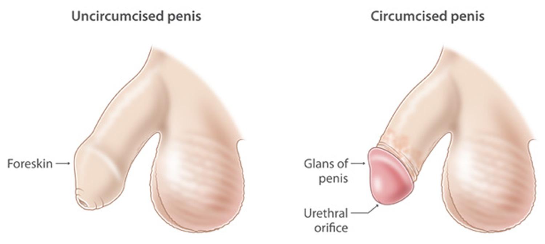 Care Of Circumcised Infant