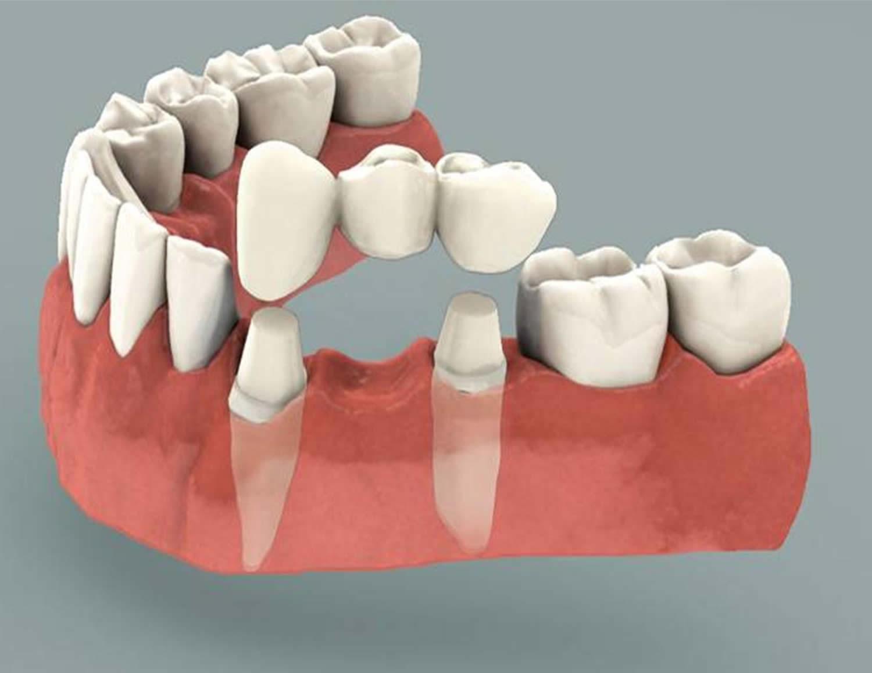 Dental Bridge - Procedure, Dental Bridge Vs Dental Implant