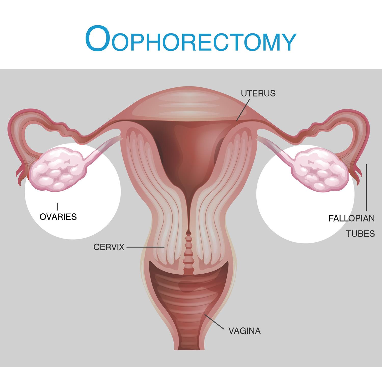 Oophorectomy Ovary Removal Surgery Salpingo Oophorectomy