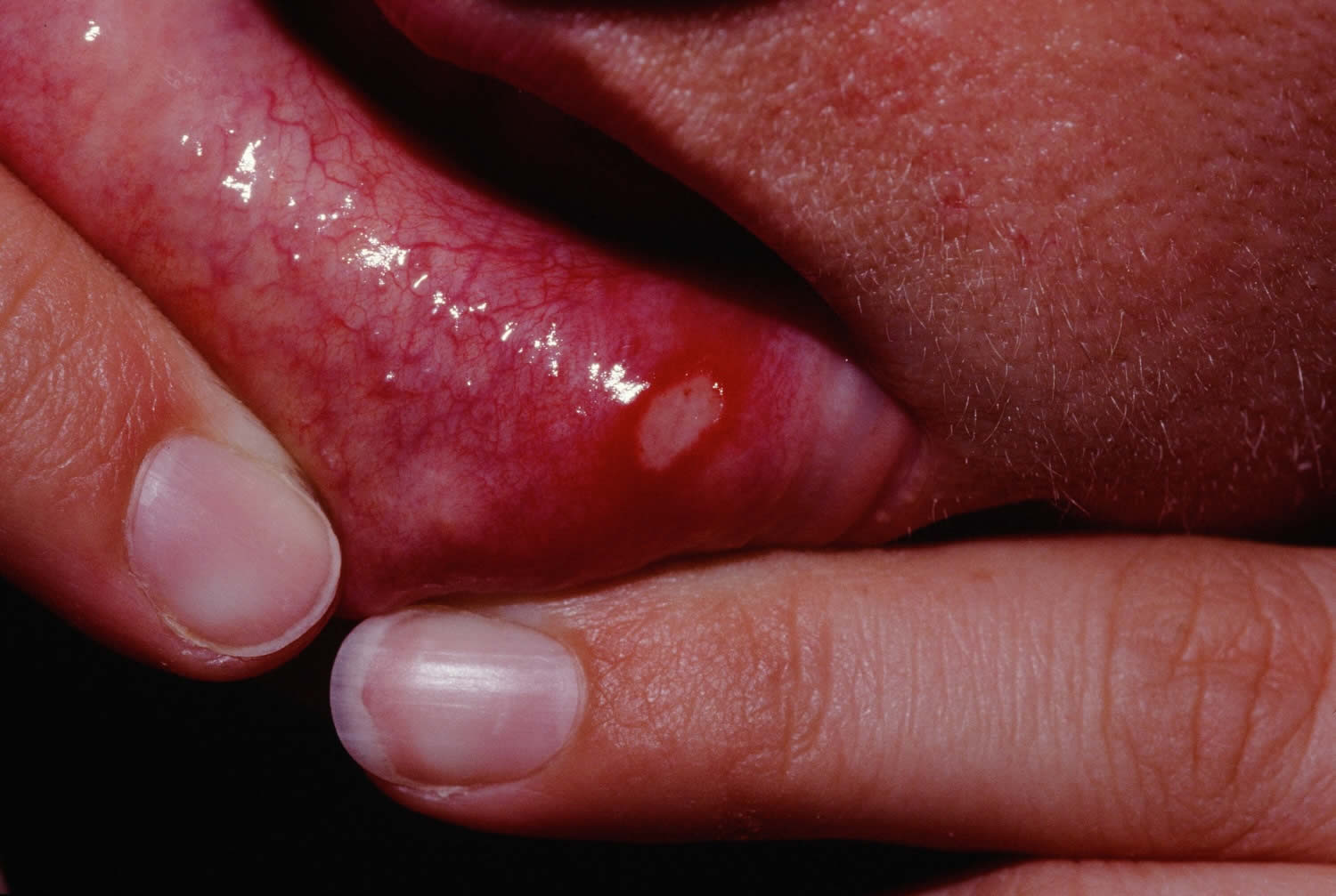 Oral aphthous ulcers — photo 7