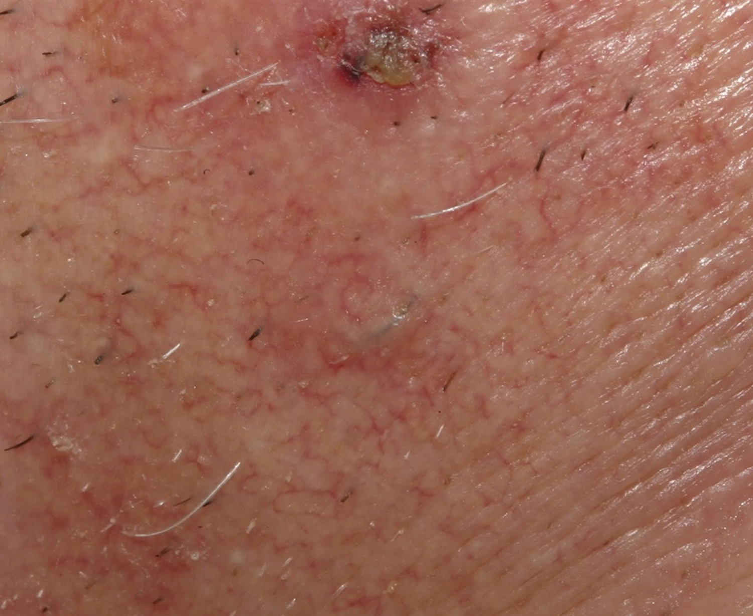 Ingrown hair vaginal area