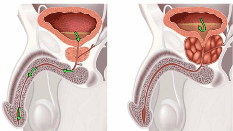 A krónikus prosztatitis kezelésére szolgáló módszerek