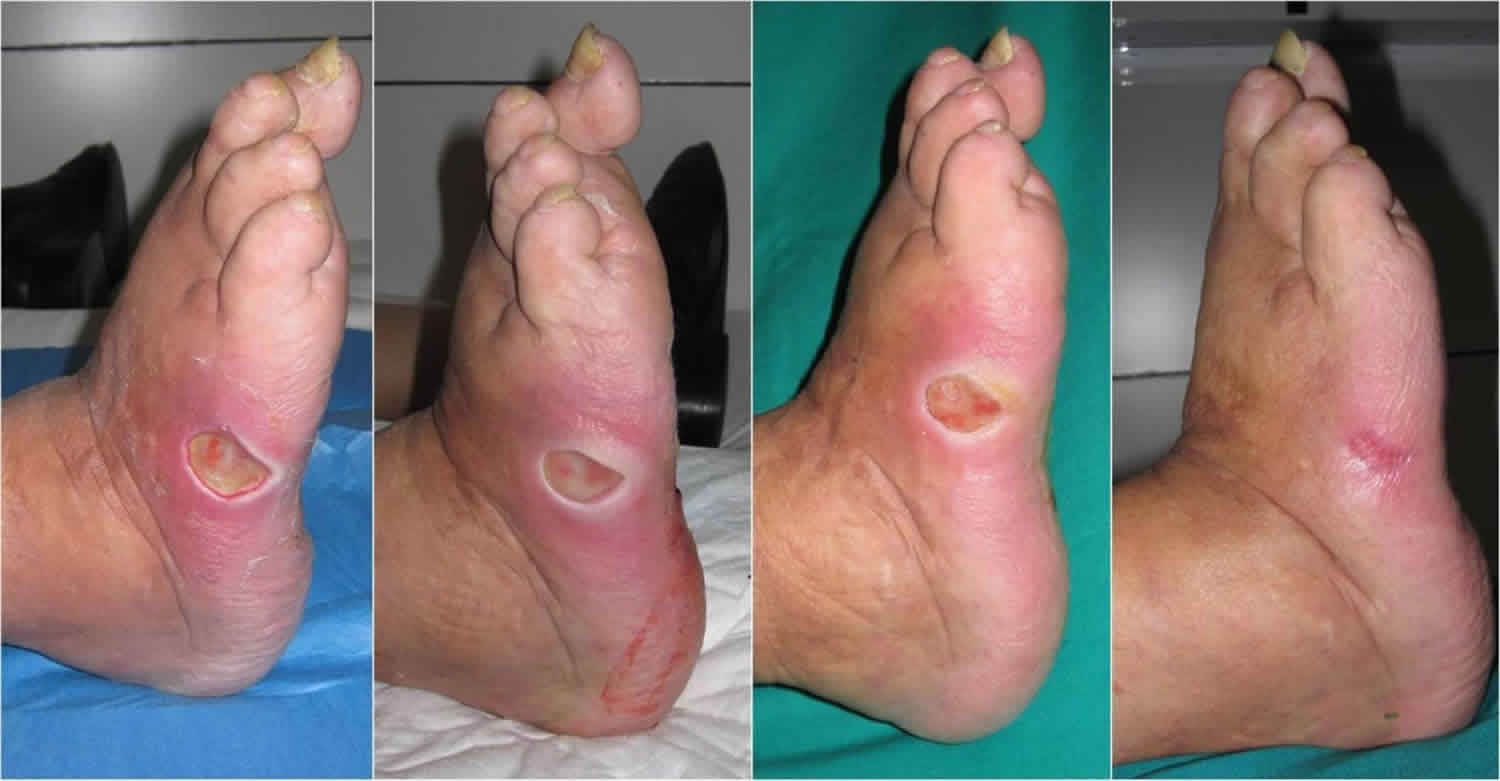 Diabetic Foot Problems Pain Ulcer Infection And Diabetic Foot Treatment