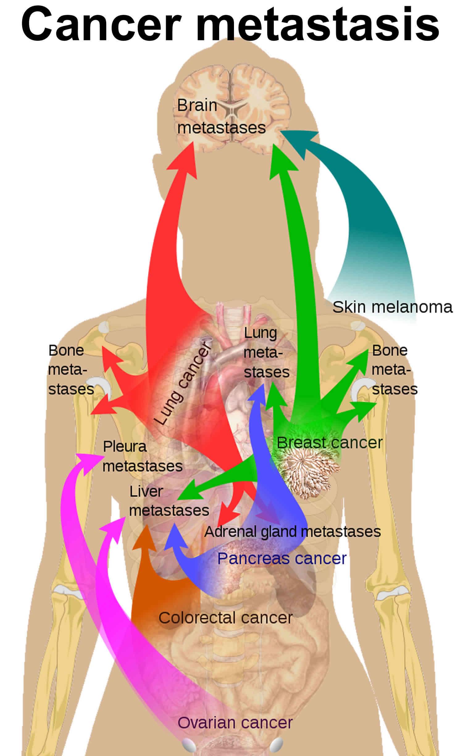 Cancer Metastasis Causes Symptoms And Metastasis Survival Rate