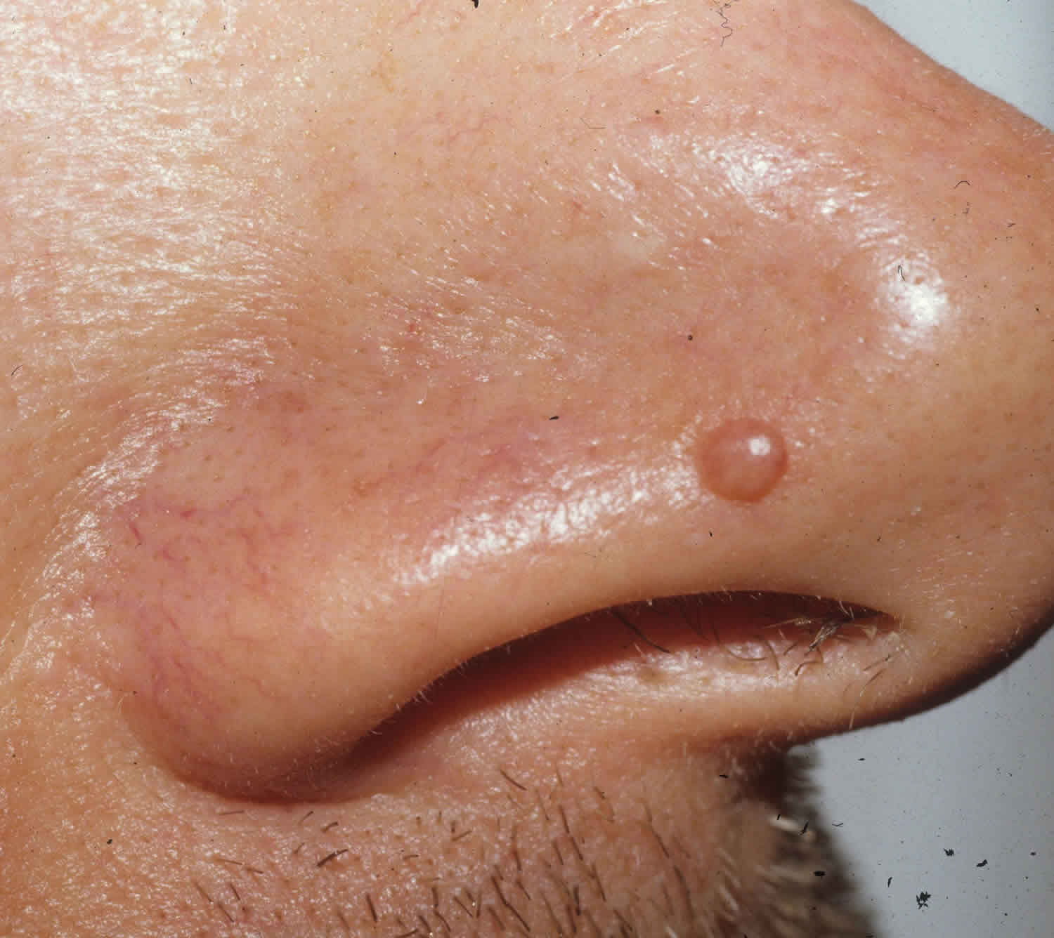 Papule or fibrous papules on nose causes, diagnosis