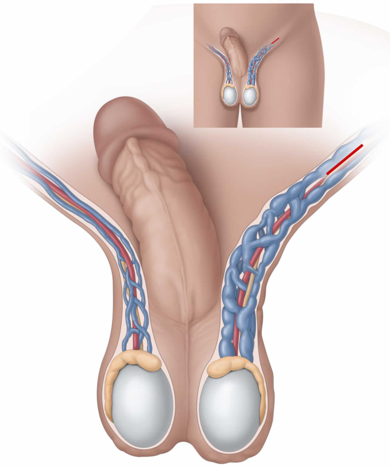 Может ли болеть левое яичко от простатита омник для лечения простатита