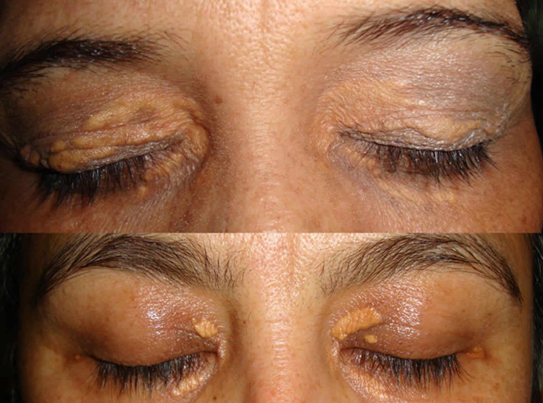 Xanthoma eye, tendinous, tuberous and disseminatum causes ...