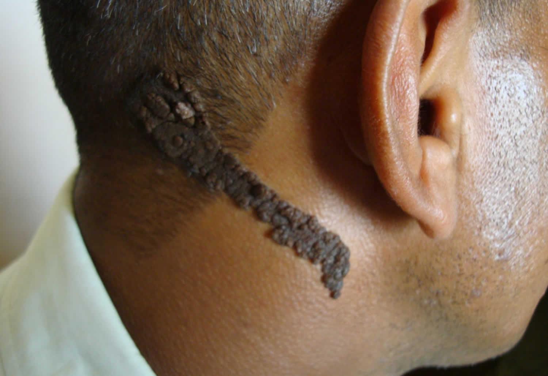 признаки веррукозного невуса