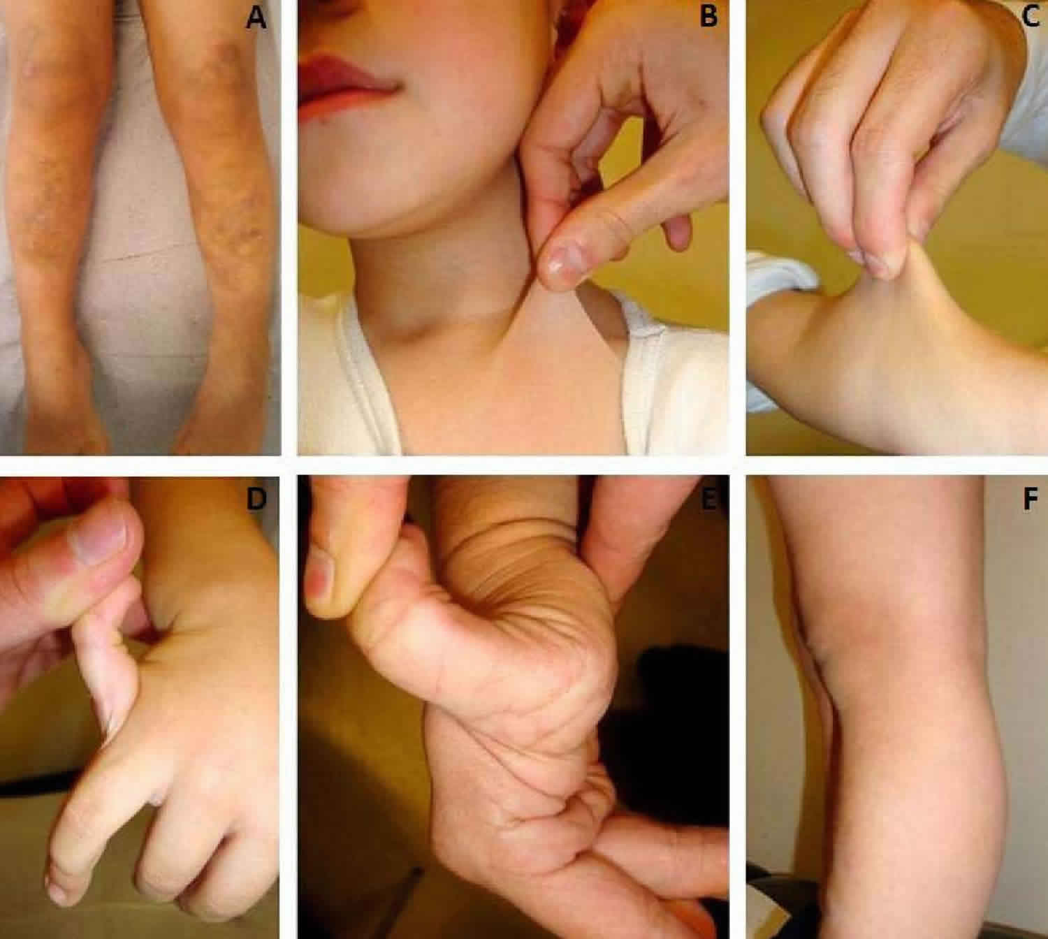 Joint hypermobility syndrome causes, symptoms, test, diagnosis & treatment