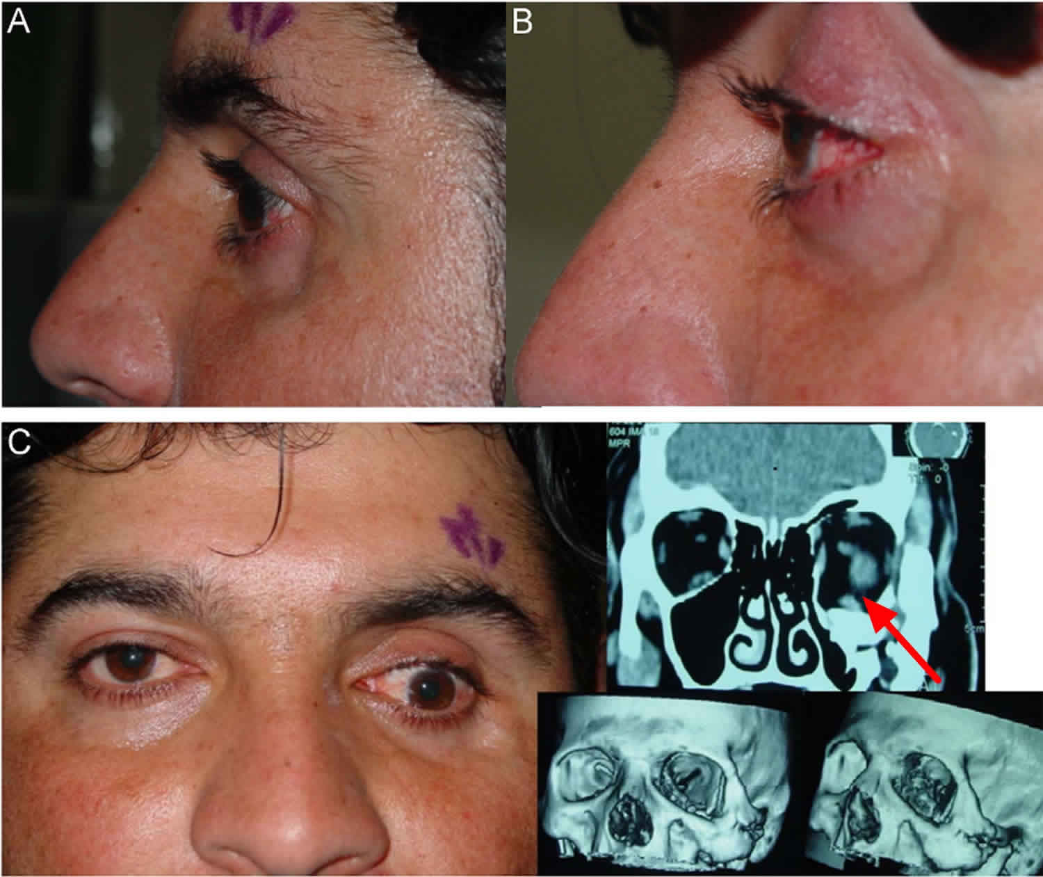 Enophthalmos due to blow-out fracture