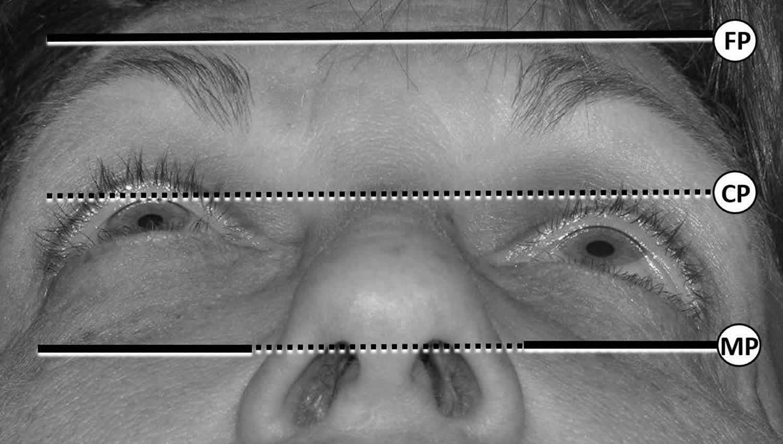 Worms eye photographs