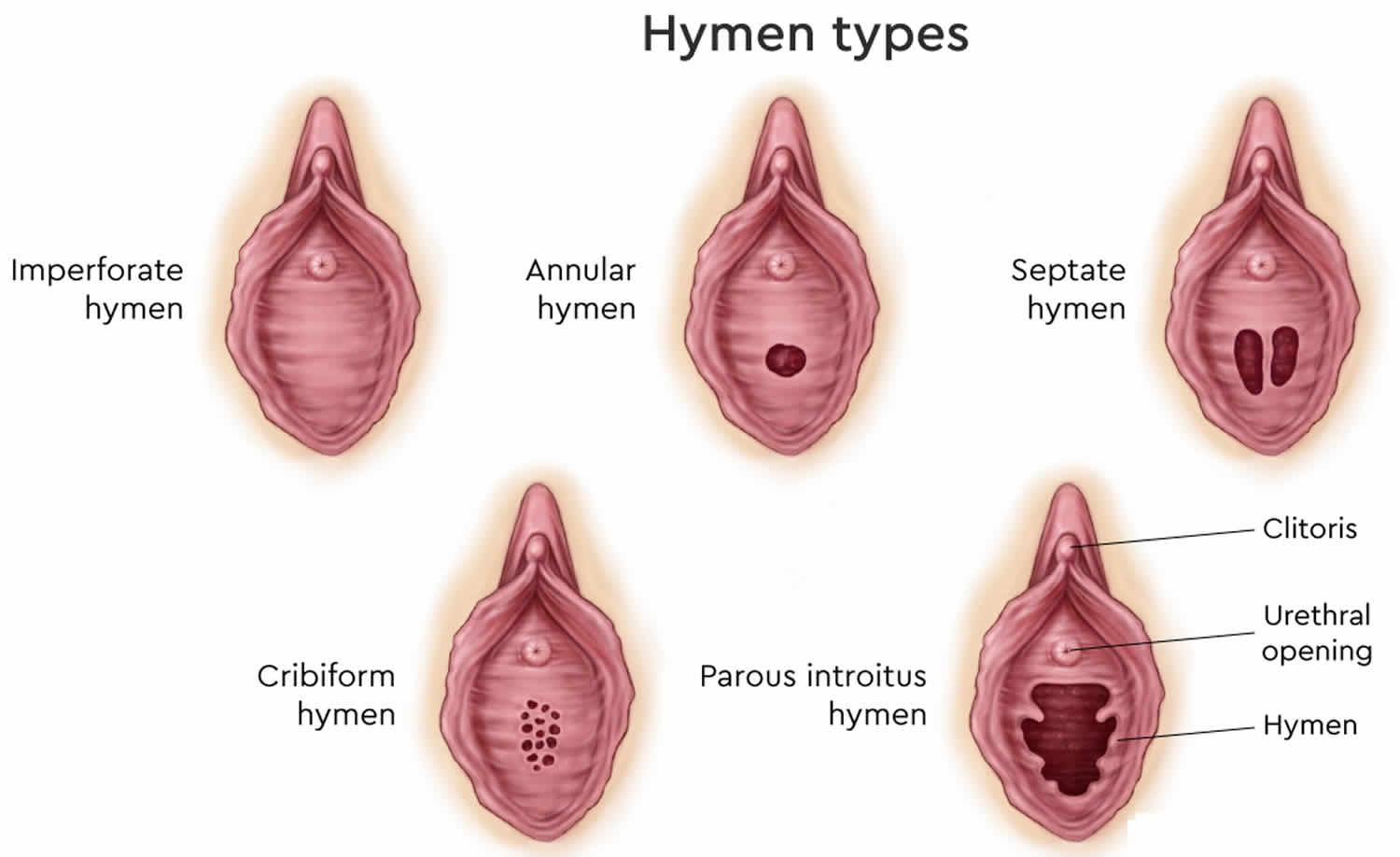 Septate hymen sex
