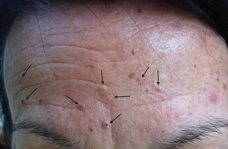 Muir Torre Syndrome Causes Symptoms Diagnosis Treatment Prognosis