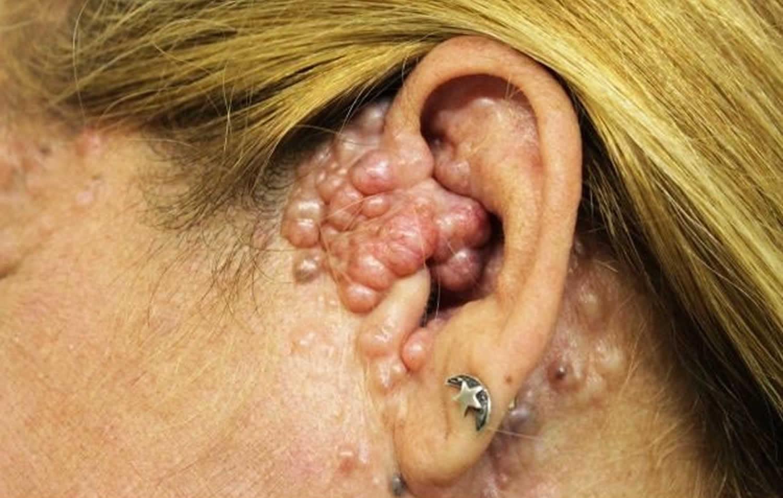 Multiple familial trichoepithelioma
