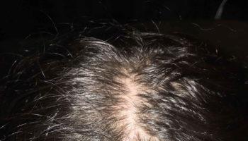 trichilemmal cyst