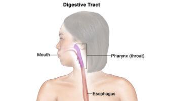 Eosinophilic gastroenteritis