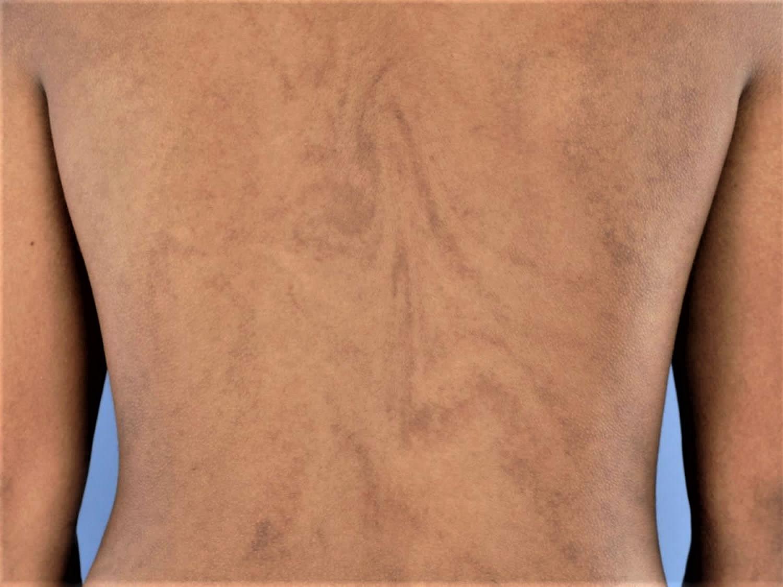 hypomelanosis-ito
