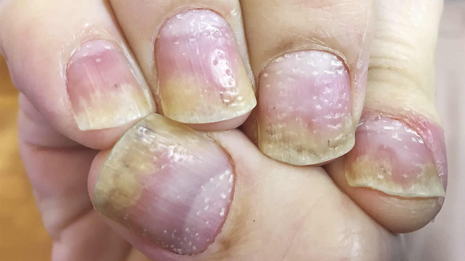 nail psoriasis causes and treatment)