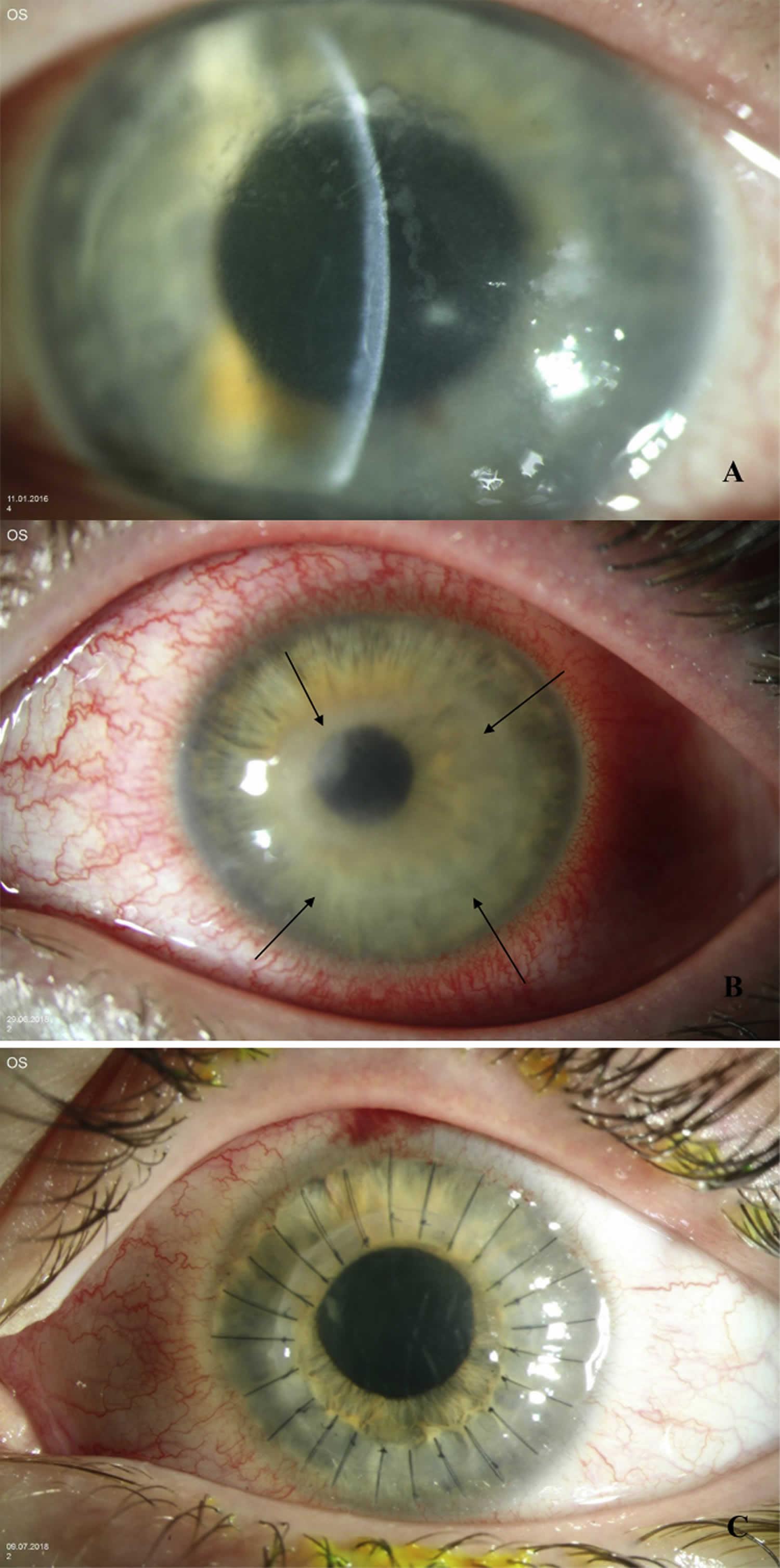 Acanthamoeba keratitis dirty epithelium signs