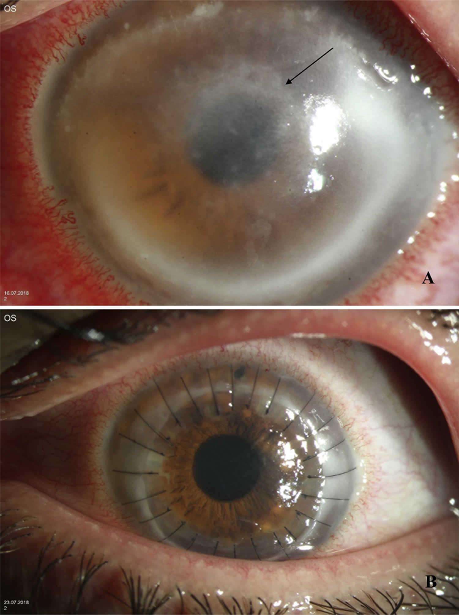 Acanthamoeba keratitis multifocal stromal infiltrates signs
