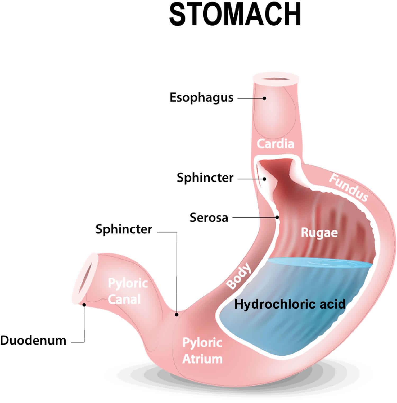 Achlorhydria