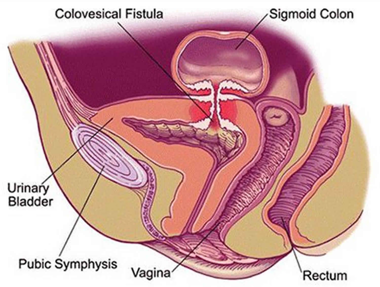 Colovesical Fistula Causes Symptoms Diagnosis Treatment Prognosis