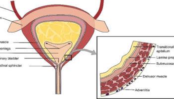 Radiation cystitis