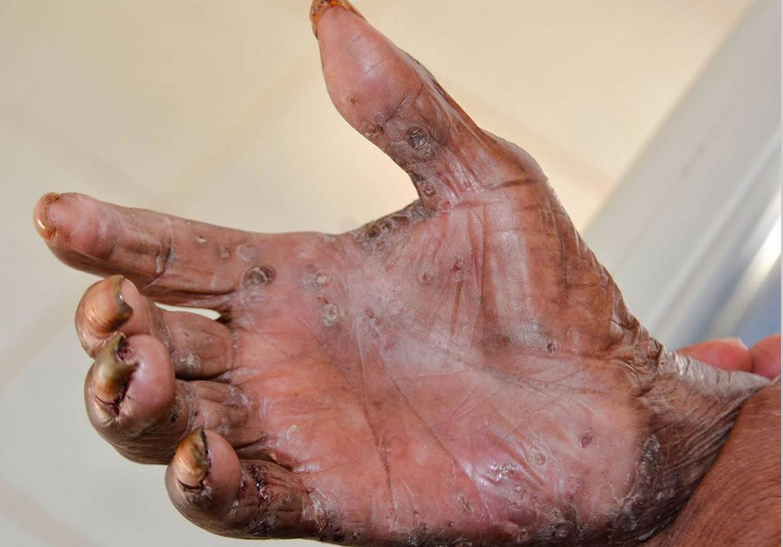 Tungiasis hand