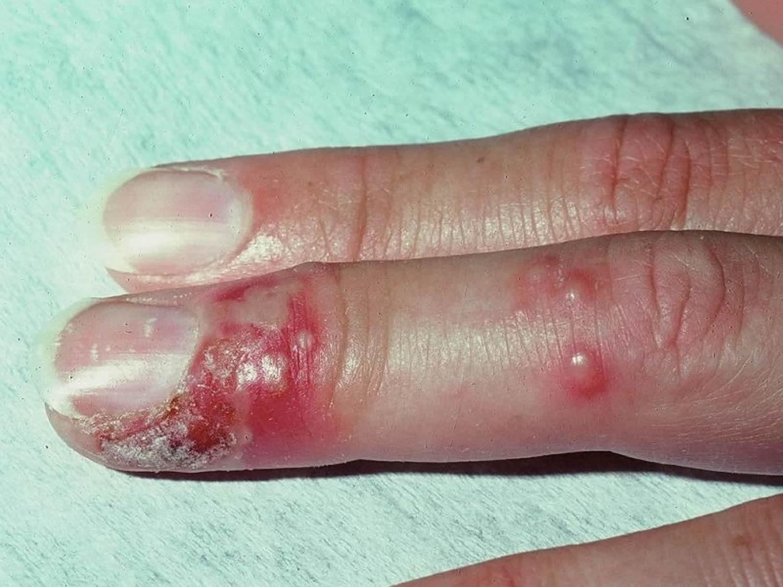herpetic whitlow finger