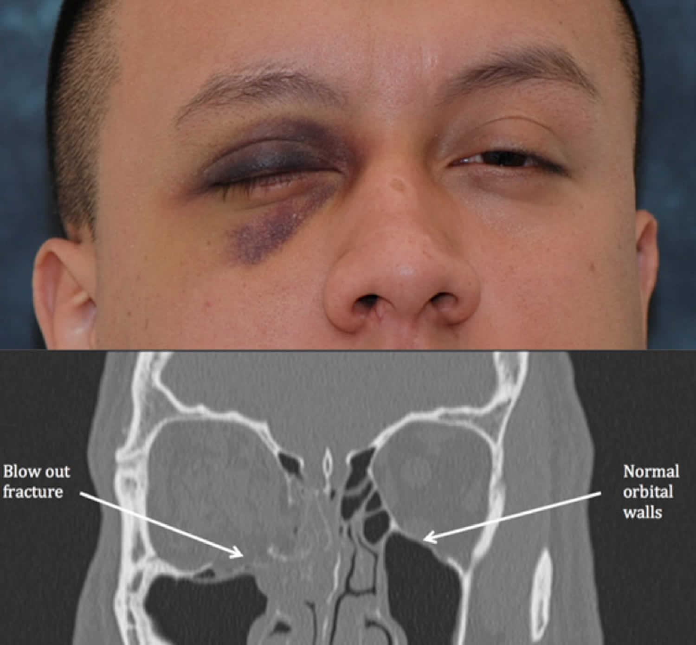 Orbital floor fracture causes, symptoms