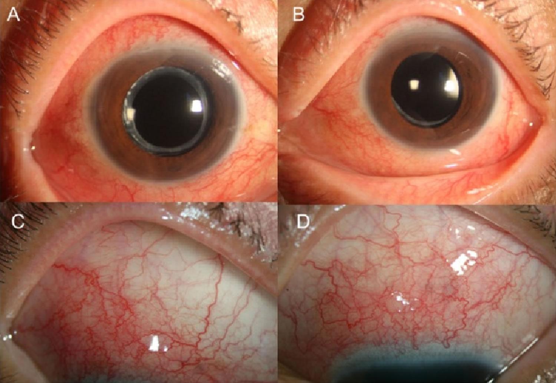 toxocariasis eye