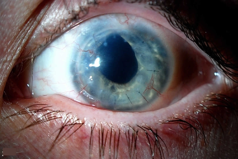 corneal neovascularization