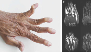 jaccoud arthropathy