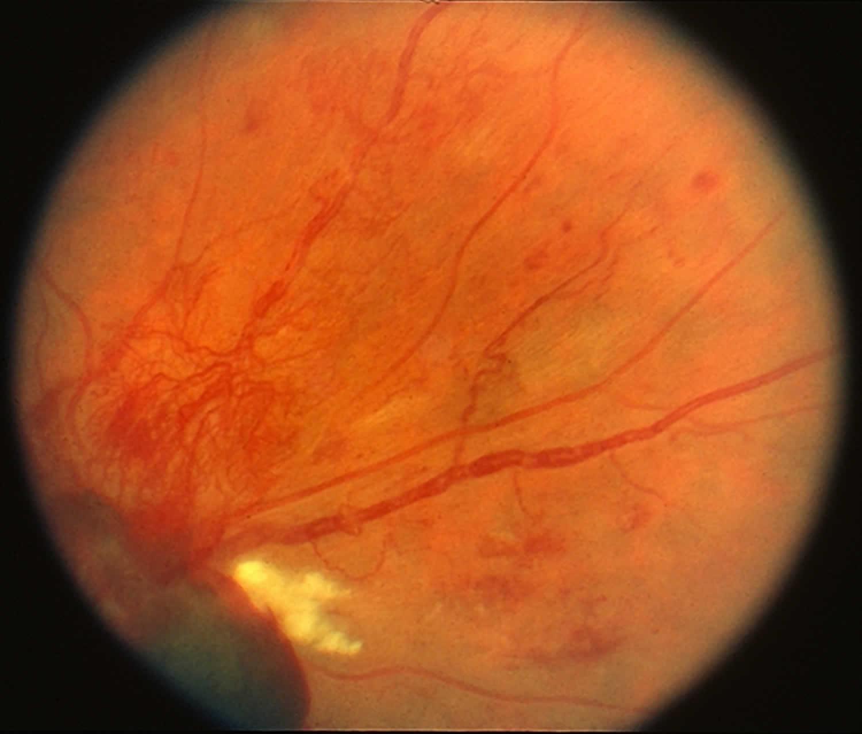 Retinal neovascularization