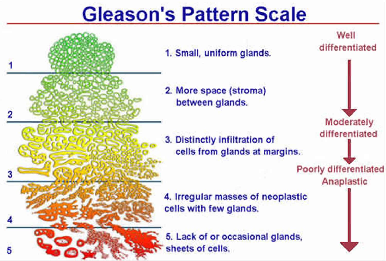 gleason score adenocarcinoma prostate)